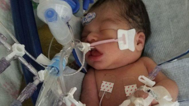 Marlen Ochoa-Lopez murder: Baby cut from womb dies 12