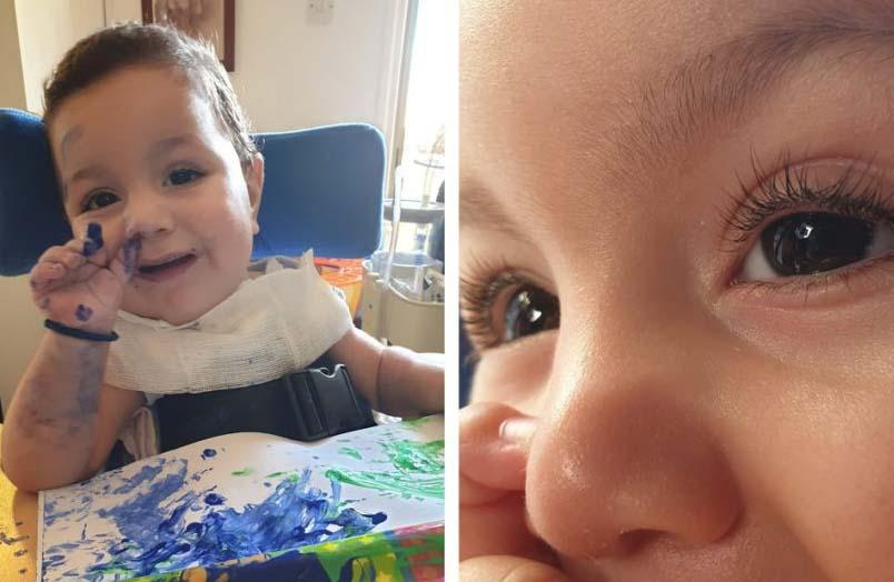 Little Antonis needs help to overcome a very rare disease 15