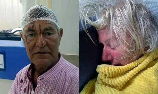 Irish couple beaten by neighbours after disagreement turns violent in Turkey's Didim 1