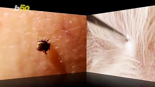 How to Remove a Tick the Right Way!